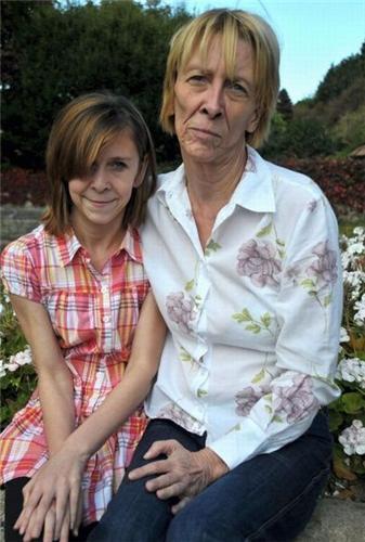 Шок: 13-летняя девочка Зара Хартшорн (Zara Hartshorn) получила в наследство... старость (ФОТО)