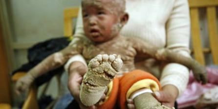 Ребенка покрывается плотной чешуей