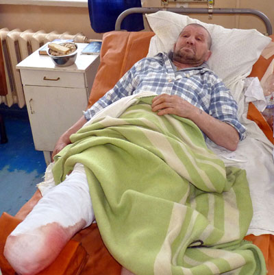 Александр Ошурко из-за мороза остался без ног.