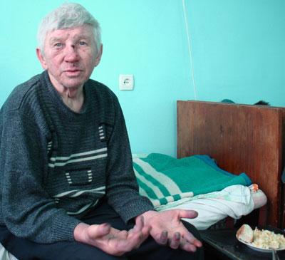Такие пациенты, как Владимир из Енакиева, в своем лечении рассчитывают в основном на гуманитарную помощь.
