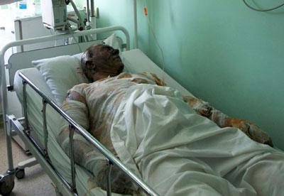 Страшные ожоги практически обезличили всех девятерых. На этом снимке трудно узнать с первого взгляда 43-летнего Юрия Успенского. Но это временно...