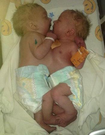 буржуйка, обложенная во сне знакомы родила близнеццов парнем маетесь