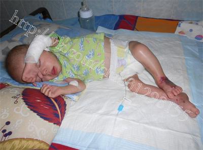 Ребенку нужна помощь. Андрей Лысенко