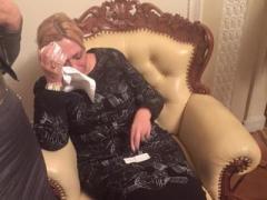 В Сети появились фото Кужель после  конфликта с Тетеруком