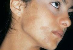 Пігментні плями: лікуємось від напасті