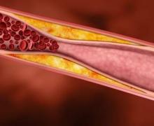 Медики опровергли популярные мифы о холестерине