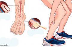 Судороги в ногах: откуда они берутся, и как с этим справиться