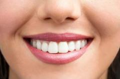 """Стоматологи назвали продукты, """"убивающие"""" белизну зубов"""