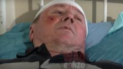 Выживший при подрыве авто на КПП «Еленовка» дал первое интервью. ВИДЕО