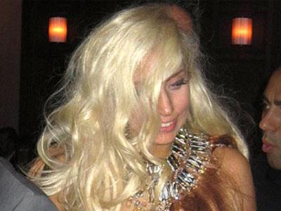 Сильная потливость и выпадение волос