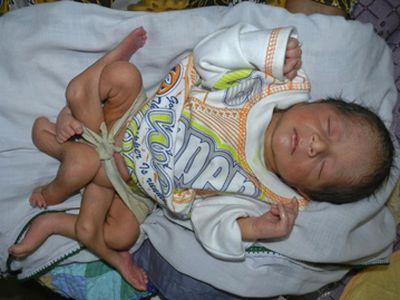 Фото ребенка родившегося на 30 недели
