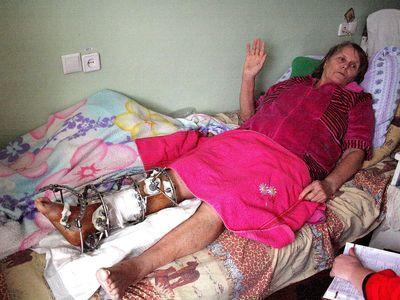 Зинаида Пронина искренне благодарна врачам, которые большими усилиями сохранили ей ногу.