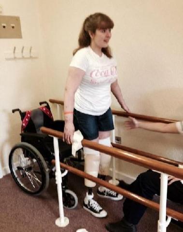 """История – шок: уйдя с лекции с симптомами """"похмельного синдрома"""", 21-летняя студентка в больнице лишилась ног, части руки и пальцев"""