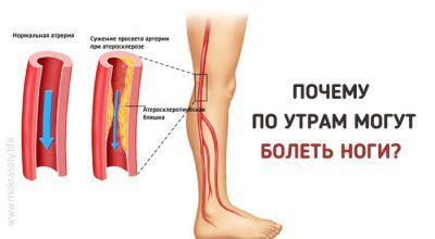 болит стопа ноги по утрам после сна могли дать больше