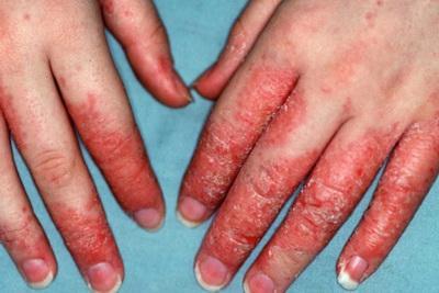 Кожные заболевания рук у детей 24
