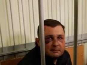 Шепелева арестовали на 2 месяца
