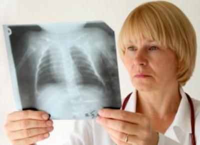Как самостоятельно распознать воспаление легких