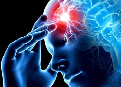 Названы основные меры профилактики инсульта