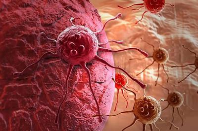 Рак на последней стадии впервые вылечили иммунотерапией