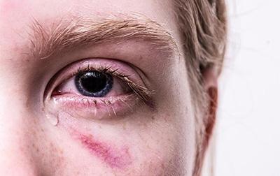 Полиция получила право срочно вмешиваться в ситуации с домашним насилием