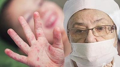 Минздрав прогнозирует массовую заболеваемость корью в Украине
